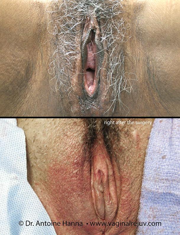 Vaginal Rejuvenation Photos